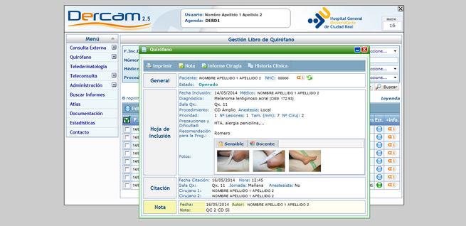 El Gobierno de Castilla-La Mancha completa la implantación del programa de teledermatología en todos los hospitales