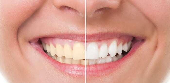 OCU advierte contra los blanqueadores dentales que se venden en Internet
