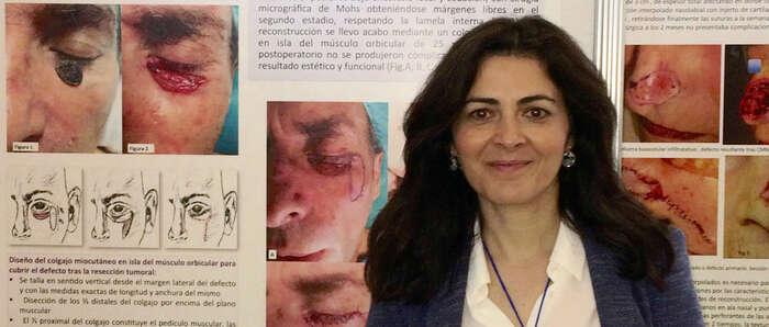 Un trabajo sobre reconstrucción de párpado inferior realizada en el Hospital de Guadalajara, premiado en el Congreso Nacional de Dermatología
